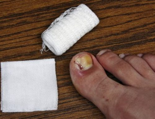 OUCH! Painful Ingrown Toenail Alert
